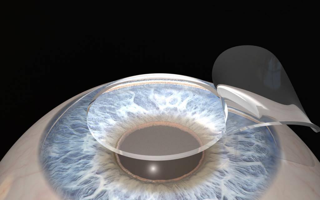 Может ли ухудшиться зрение после лазерной коррекции: почему так бывает