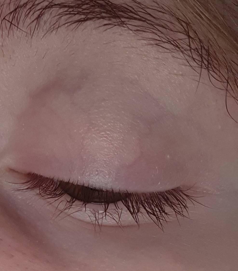 Красный белок глаза у ребенка и сосуды - причины покраснения капилляров на глазах и прожилок, точки в уголках