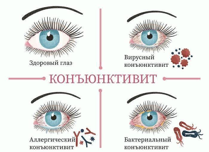 Конъюнктивит. симптомы, причины и лечение — prozreniye.ru