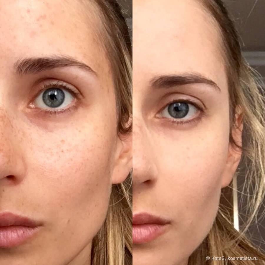 Как замаскировать синяки под глазами: множество способов - интернет журнал для девушек womanvote | не бойся быть красивой