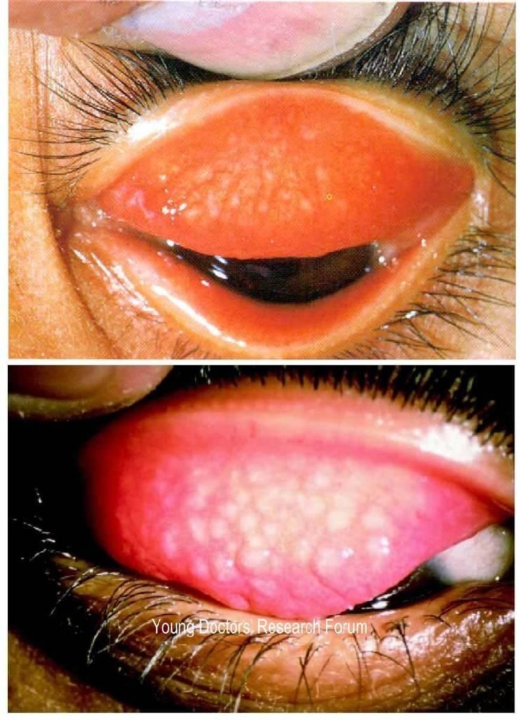 Трахома глаз - симптомы, диагностика, лечение, профилактика
