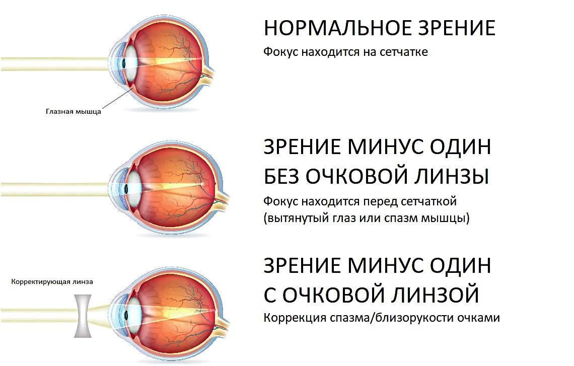 Зрение плюс 0,5 минус 0,5, что это значит? нужно носить очки?