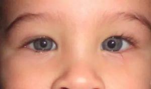 Расширены зрачки у ребенка: причины постоянно больших зрачков увеличенного размера