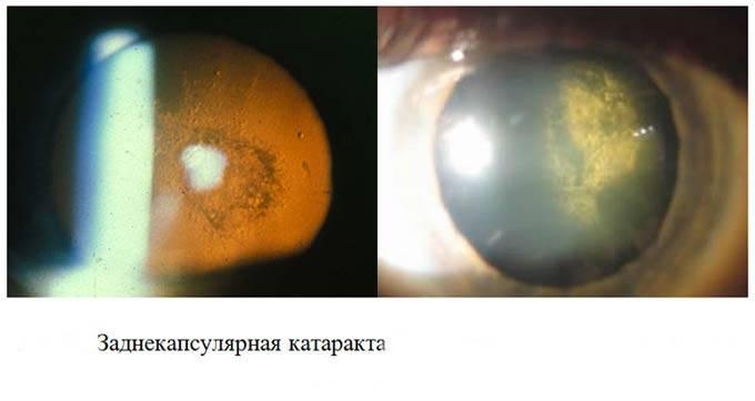 Незрелая катаракта: симптомы, лечение и нужна ли операция