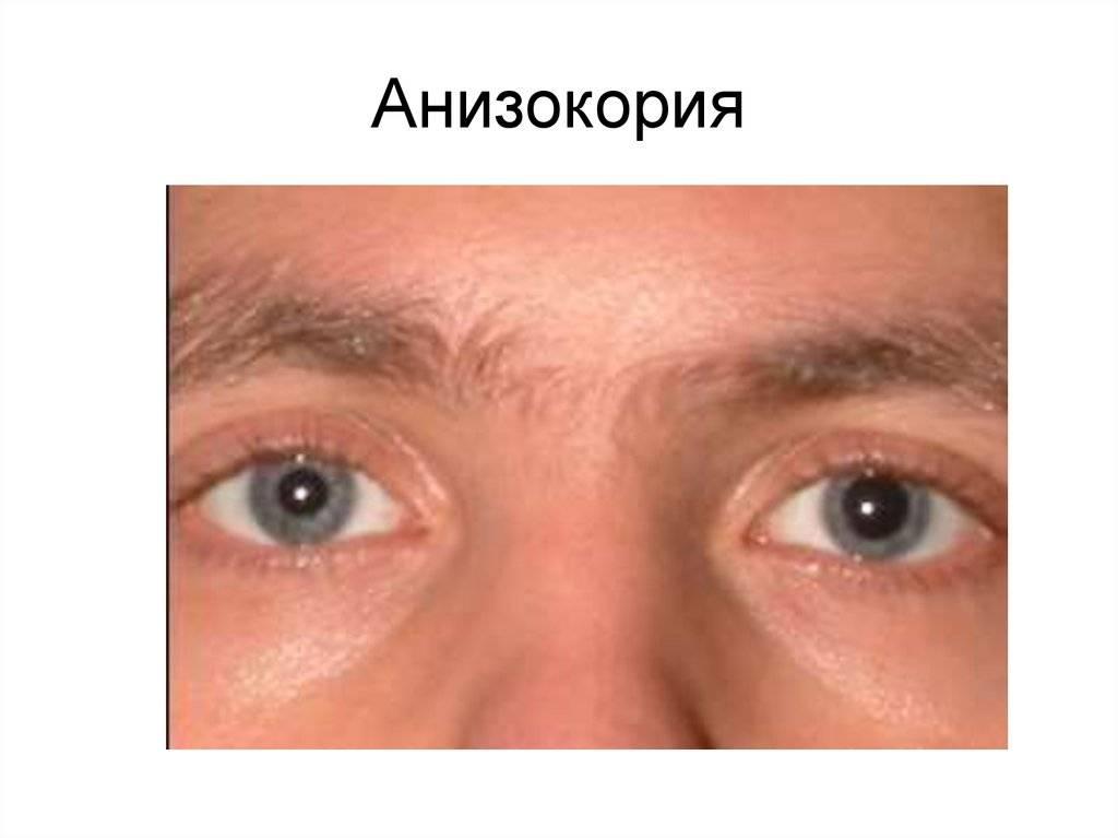 Расширенные зрачки - причины, симптом каких заболеваний