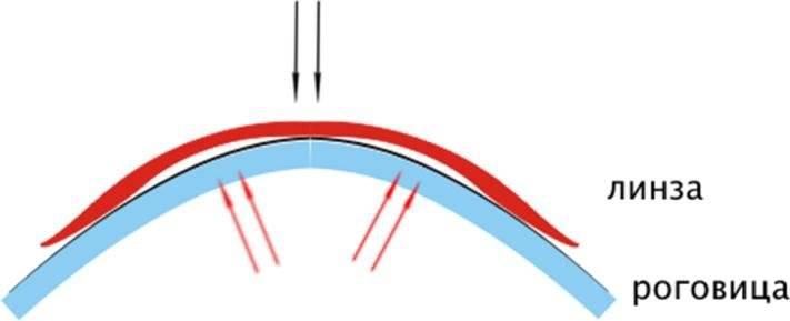 Ортокератологические линзы – универсальный метод безоперационной коррекции зрения
