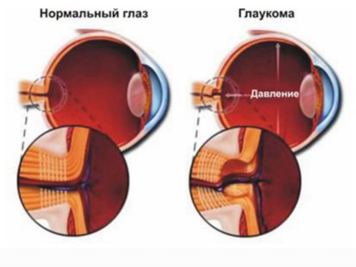 Некомпенсированная глаукома что это