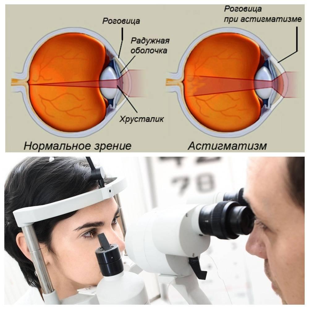 Как долго восстанавливается зрение после удаления катаракты tvstv