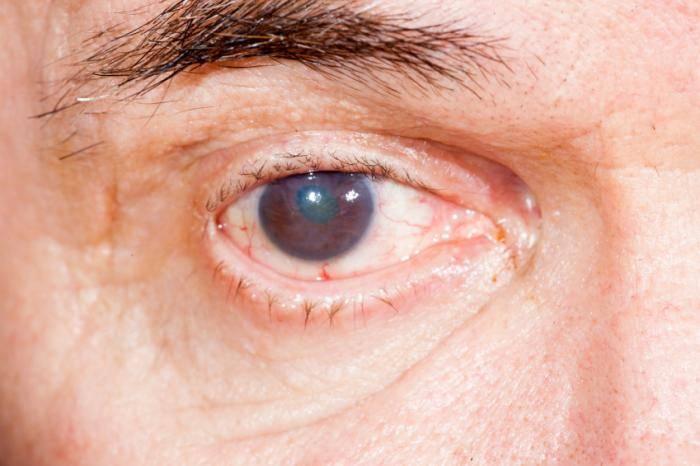 Мутные глаза у человека: причины помутнения