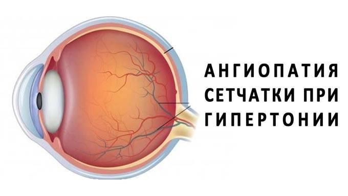Что делать при обнаружении ангиопатии сетчатки глаза у детей?