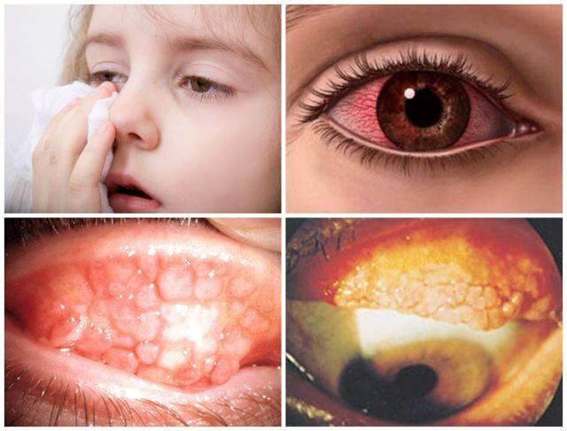 Аллергический конъюнктивит у детей — лечение