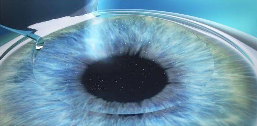 Выбираем метод коррекции зрения: фрк или ласик, что лучше?