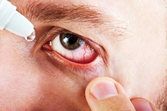 Сухость в глазах. причины, лечение, капли при сухом глазе, народные методы лечения