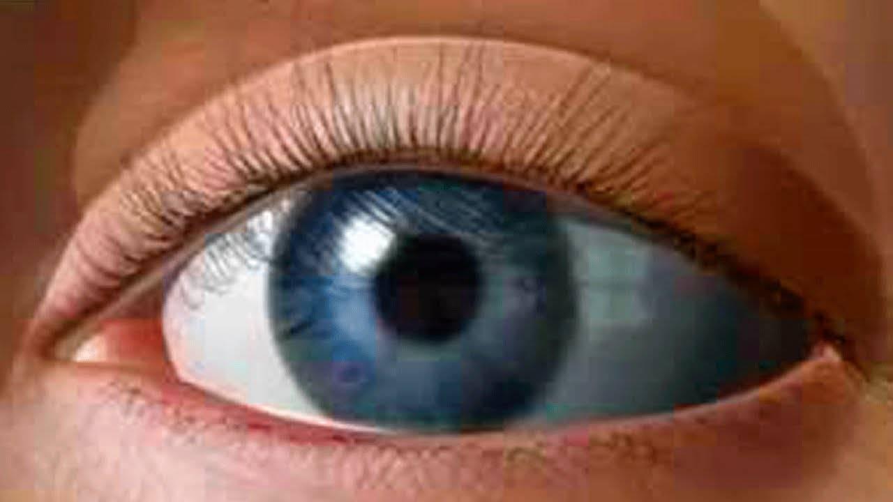 Упражнения для глаз при глаукоме и катаракте секретный метод