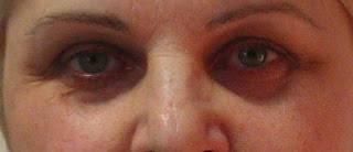 Причины западания глазного яблока — что делать при энофтальме
