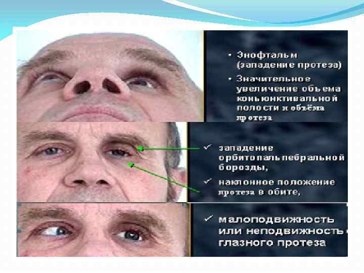 Врожденный микрофтальм и анофтальм. памятка родителям