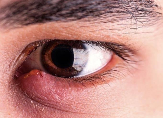 Чем и как правильно лечить ячмень на глазу у ребенка: полезные советы