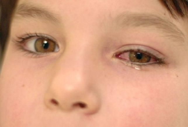 Почему болят глаза у ребенка?
