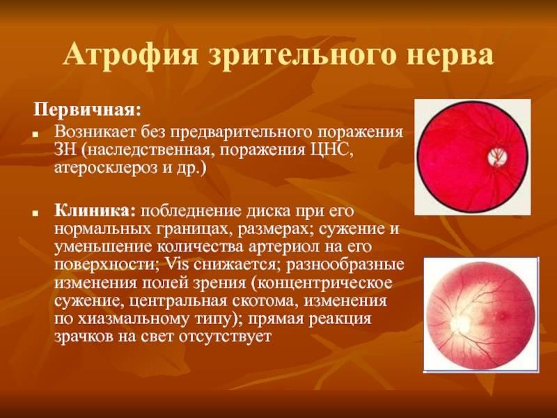 Атрофия зрительного нерва - причины, симптомы, диагностика и лечение атрофии зрительного нерва | ао «медицина» (клиника академика ройтберга)