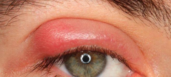 Что делать, если опухло веко над глазом?