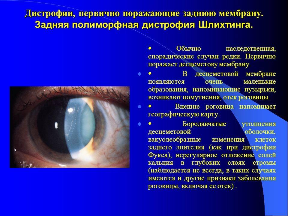 Дистрофия роговицы: лечение, причины, диагностика