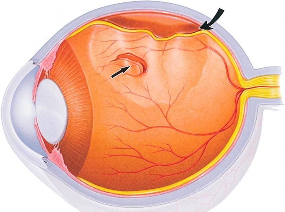 Лечение деструкции стекловидного тела глаза