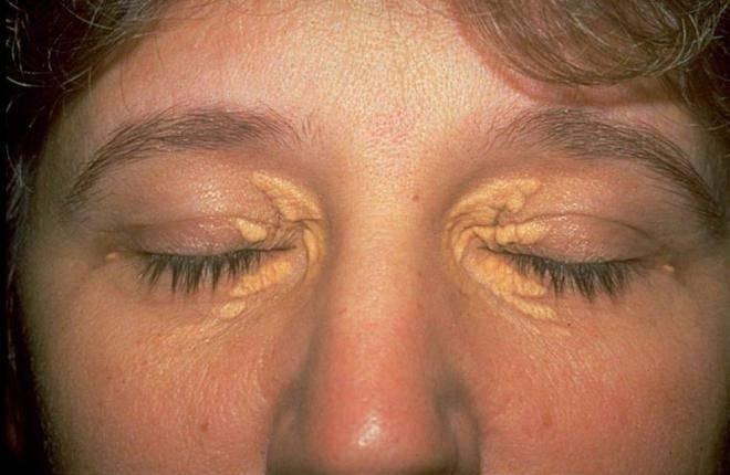 Шелушатся веки над глазом, причины и лечение