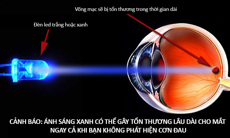 Вред светодиодных ламп для глаз. влияние светодиодных ламп на здоровье человека