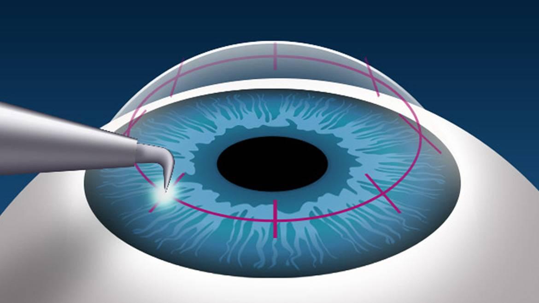 Что нужно знать о лазерной коррекции дальнозоркости?