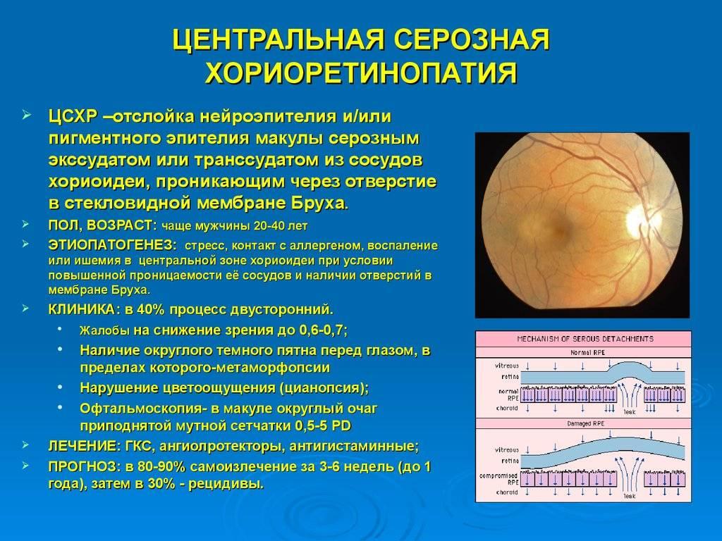 Центральная серозная хориоретинопатия сетчатки глаза - ее причины и лечение, прогноз и что нельзя делать после операции