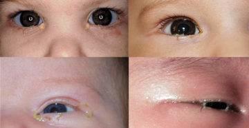Что делать, если у новорожденного гноится глаз - топотушки