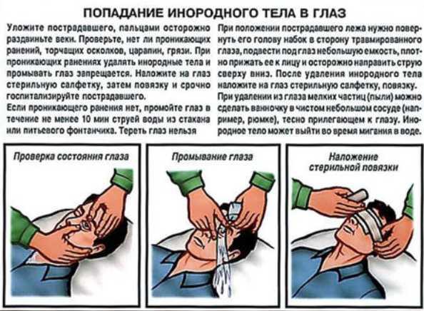 Что делать, если в глаз попала окалина из болгарки? как оказать помощь?