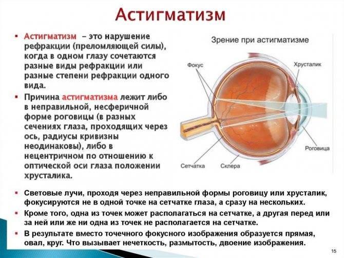 Определение наличия сложного гиперметропического астигматизма у детей, его коррекция и лечение