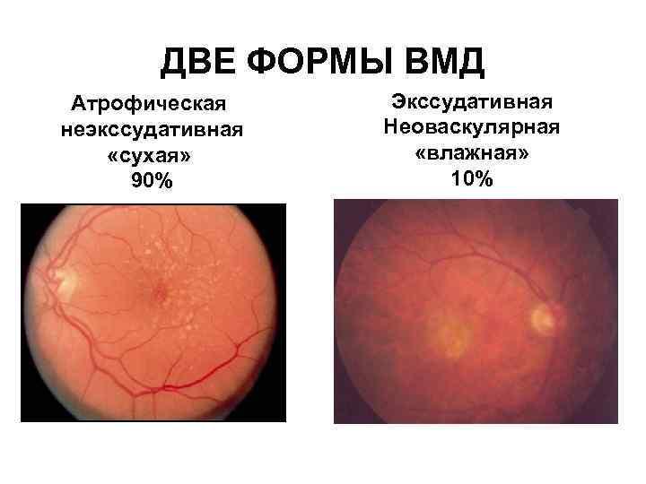 Макулодистрофия сетчатки глаза: что это такое, сухая и влажная формы