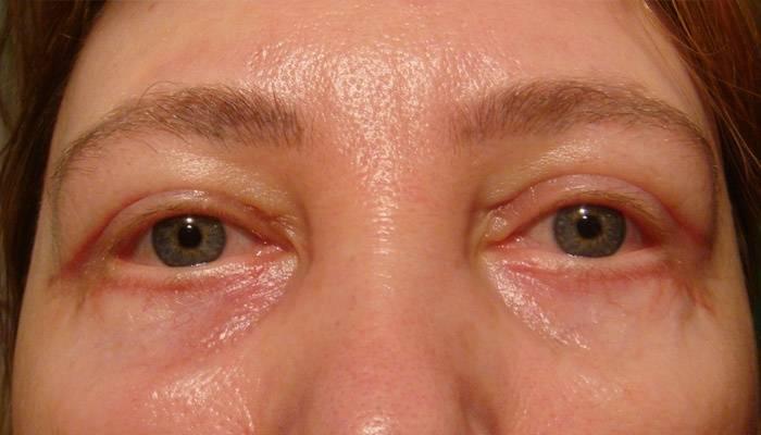 Отек века на одном глазу (нижнего, верхнего): причины, лечение у взрослых, сопутствующие симптомы (болит, покраснело), профилактика