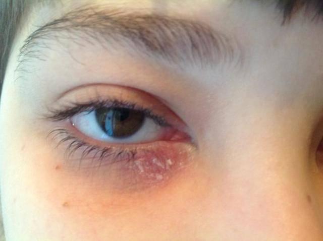 """Покраснение глазного яблока: причины и лечение - """"здоровое око"""""""