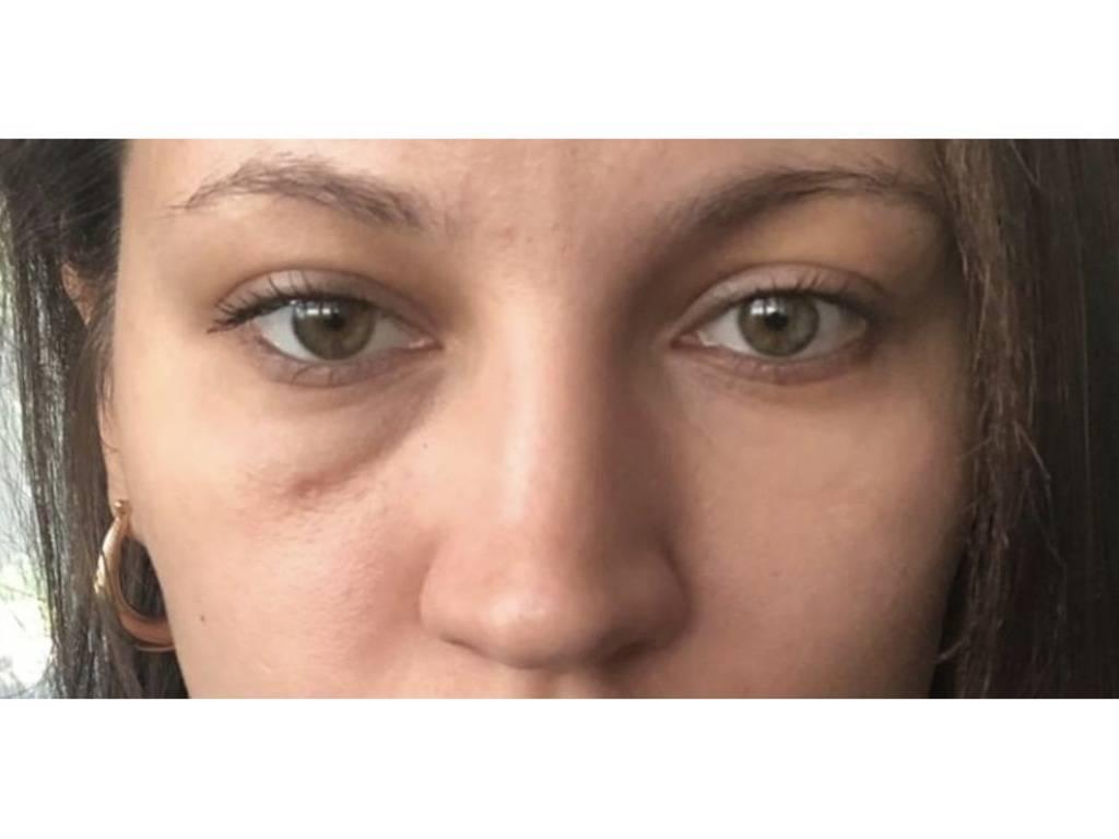 Мешки под глазами причины и лечение у женщин в домашних условиях
