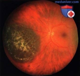 Меланома хориоидеи глаза - что это такое, почему возникает, как правильно определить, прогноз на жизнь