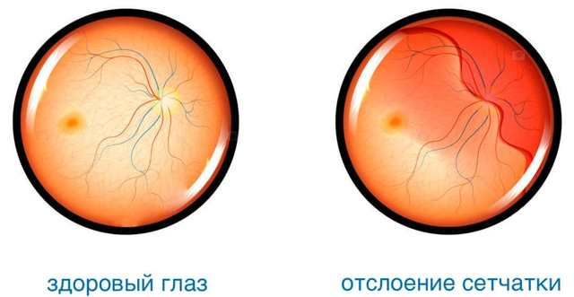 Сужены сосуды глазного дна