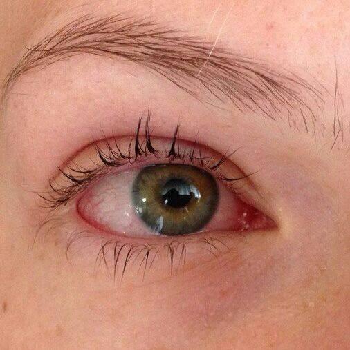 Хемоз конъюнктивы: симптомы и способы лечения - здоровое око | za-rozhdenie.ru