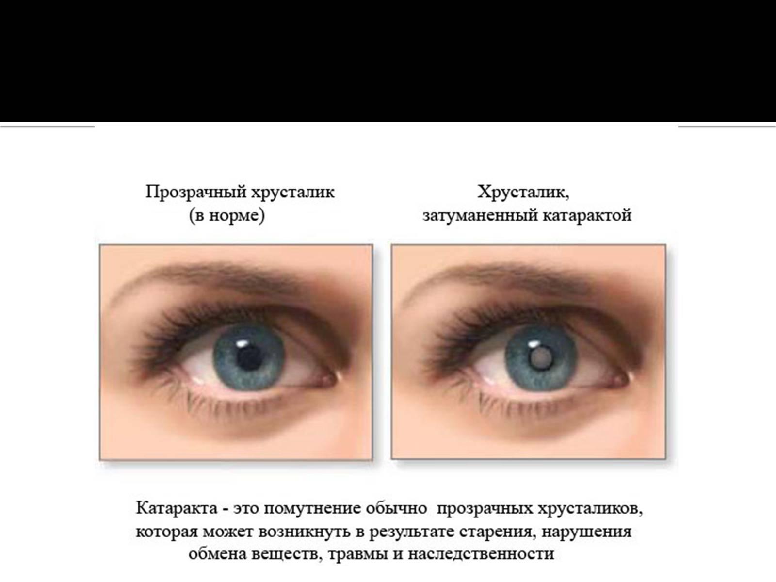Расплывается в глазах: причины, почему мутнеет изображение, болезни, вызывающие кратковременные помутнения