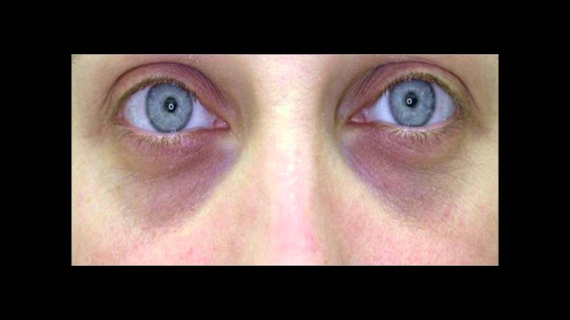 Почему под глазами темные круги у мужчин: причины, описание с фото и способы решения проблемы  — ruxa