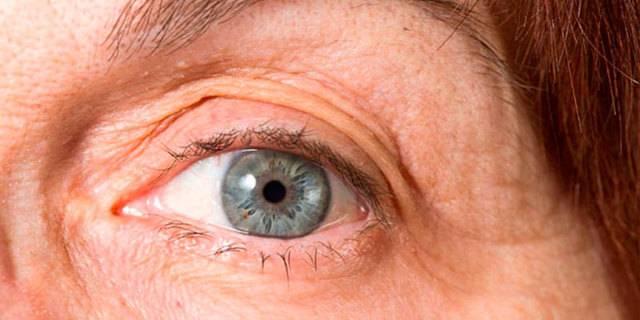 Длительность реабилитации после замены хрусталика  - центр хирургии глаза