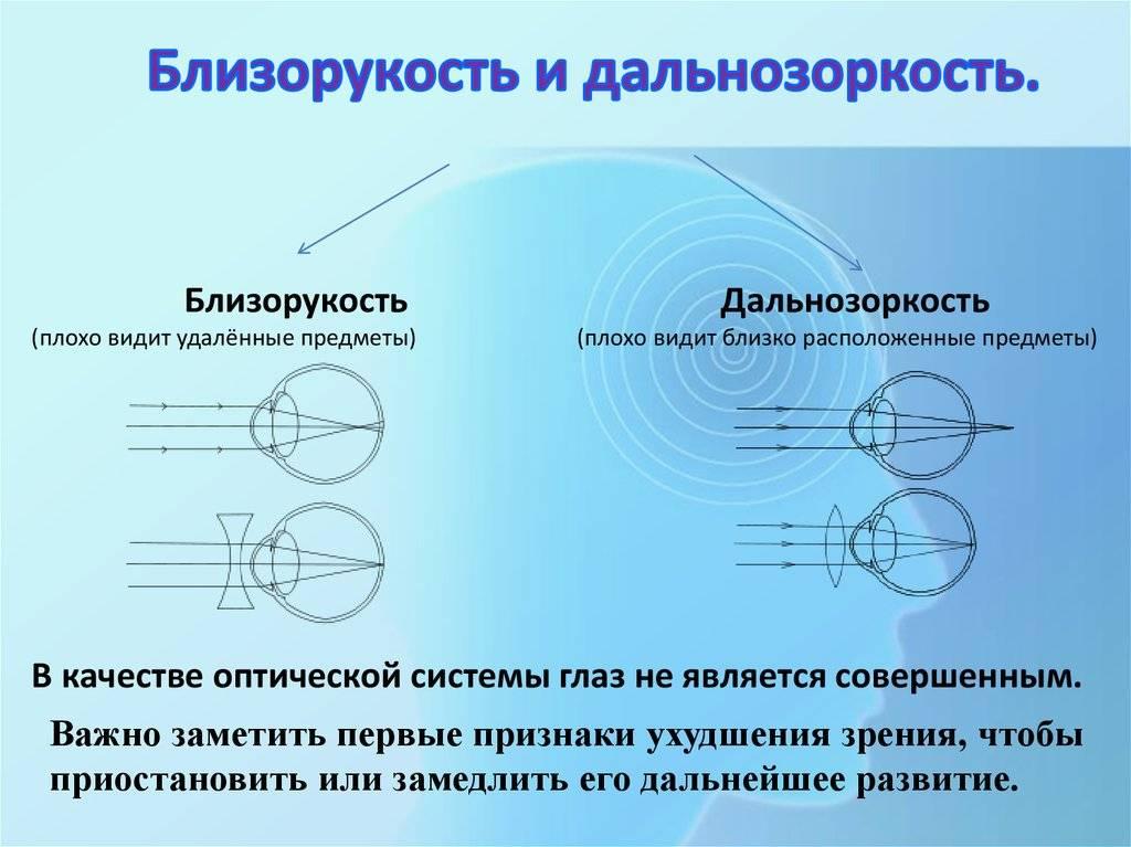 Гиперметропия (дальнозоркость): слабая, средняя и высокая степени