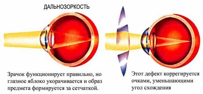 Гиперметропия высокой степени: что это такое, причины, симптомы