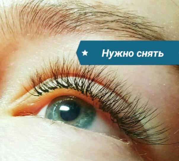 Красные глаза после наращивания ресниц: почему они такие и болит внизу один или оба, нормально ли это, что делать, как убрать, через сколько пройдет, каково лечение?