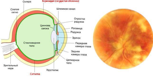 Виды и различия хориоретинита глаза – болезнь с очень серьёзными последствиями