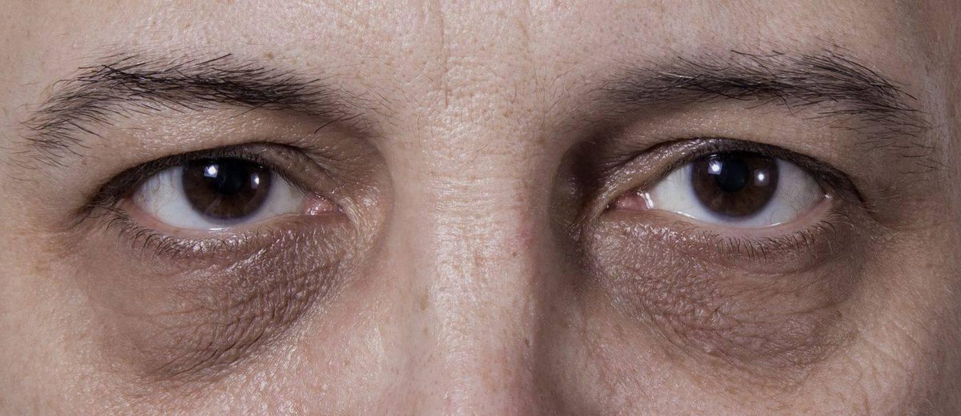 Темные круги под глазами: не все круги образуются одинаково!