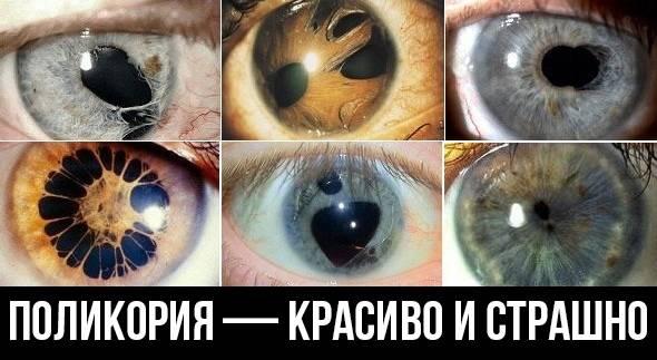 Глаз - секреты клинической диагностики - медицинская учебная литература
