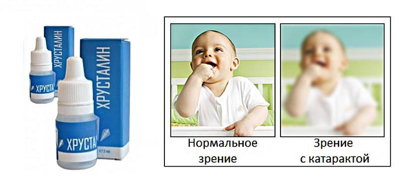 Капли для глаз хрусталин (hrustalin), 5 мл (ннпцто) | глазные капли